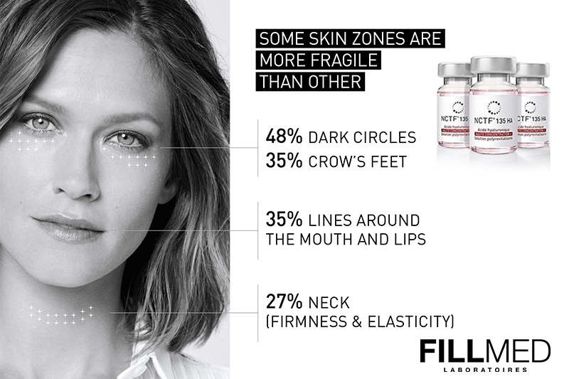 Mesotherapy – Not Only For The Face